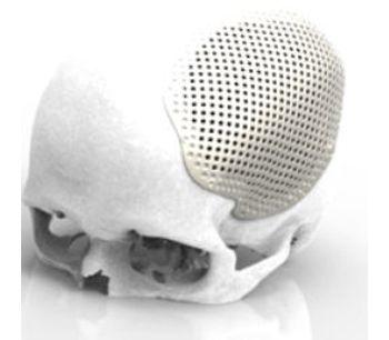 Renishaw - Craniomaxillofacial Implants and Software