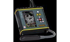 DRAMINSKI - Handheld Ultrasound Scanner