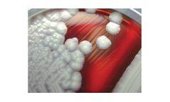Bacterial Analysis