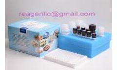 REAGEN - Model R N H 94016 - Diazepam elisa kit