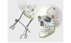 LeForte - Plate and Screw for Craniomaxillofacial Surgery