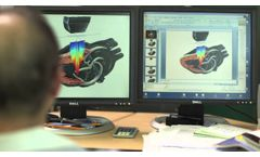 XDI Imaging Technology on the All New X-Porte Ultrasound Kiosk From SonoSite - Video