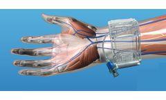 TZ-Medical - Adjustable Radial Cuff (ARC)