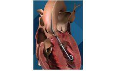 Impella 2.5 - Minimally Invasive Heart Pump