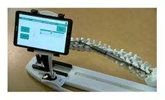 AMB - Model FLYTE-XFIX - Smart Automated Growing Rod Technology - Struts