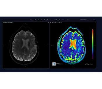 Arterys - Version Neuro AI - Neuro-Radiology Software