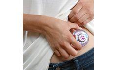enFuse - On-Body Infusor - Drug Delivery Device