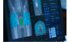 Accuray Alliance Services for Radiotherapy Innovation