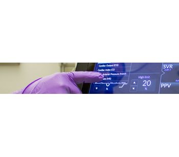 Multi-Beat Analysis Technology (MBA) for Clinical Impact - Medical / Health Care - Clinical Services