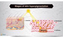 What is skin hyperpigmentation ? - Vdieo