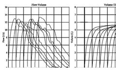 Benson Medical Instruments CCS-200 Spirometer Report Builder - Video