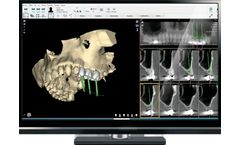 NemoScan - Solution for Diagnosis and Planning of Implantology Treatments