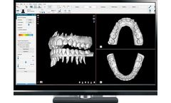 NemoCast - Solution for Diagnosis and Digital Planning of Orthodontic Models