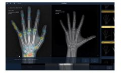 VUNO Med-BoneAge - Medical Image Analysis Software