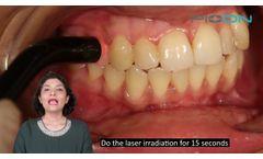 Management of Dentinal Hypersensitivity - Video