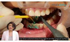 Dual In-office teeth whitening using S1 Pioon laser, 450nm wavelength - Video