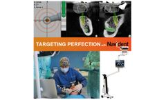Navident - Dynamic Navigation for Dental Implantation Brochure
