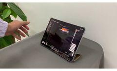 Wireless 3 in 1 Ultrasound Scanner SIFULTRAS-3.3 Triple Headed: Convex, Linear and Cardiac Probe - Video