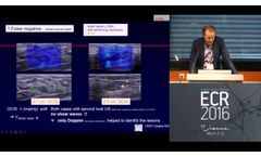 ECR 2016 Symposium - Clinical Innovations Improving Breast Cancer Diagnosis - Prof. Schäfer - Video
