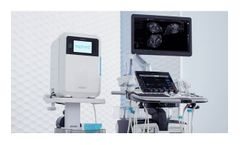 trophon - Model 2 - Automated Ultrasound Reprocessing Systems