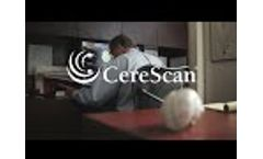 Care for Head & Brain Injuries - Video