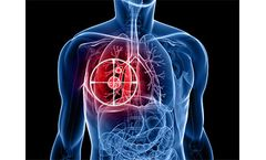Sanovas - Interventional Lung Products