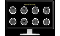 Rapid ICH - Suspected Intracranial Hemorrhage
