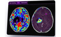 Olea Sphere - Version 3.0 - Neurology Imaging Analysis Software for Improved Patient-Centric Care