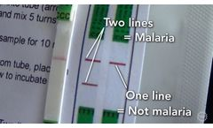 A Cheaper, Easier Way To Test For Malaria - Video