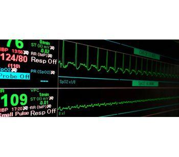 iRhythm - Atrial Fibrillation Software