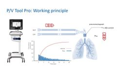 P/V Tool Pro: Assessing Lung Recruitablity and Performing Recruitment Maneuvres -Video