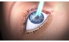 Features of SCHWIND AMARIS Excimer Laser for refractive surgery laser treatments - Video