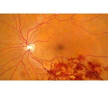 Retinal Vein Occlusion (RVO) - Medical / Health Care