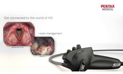 DEFINA ENT J10 - Re-defining flexible endoscopy ENT examinations - Video